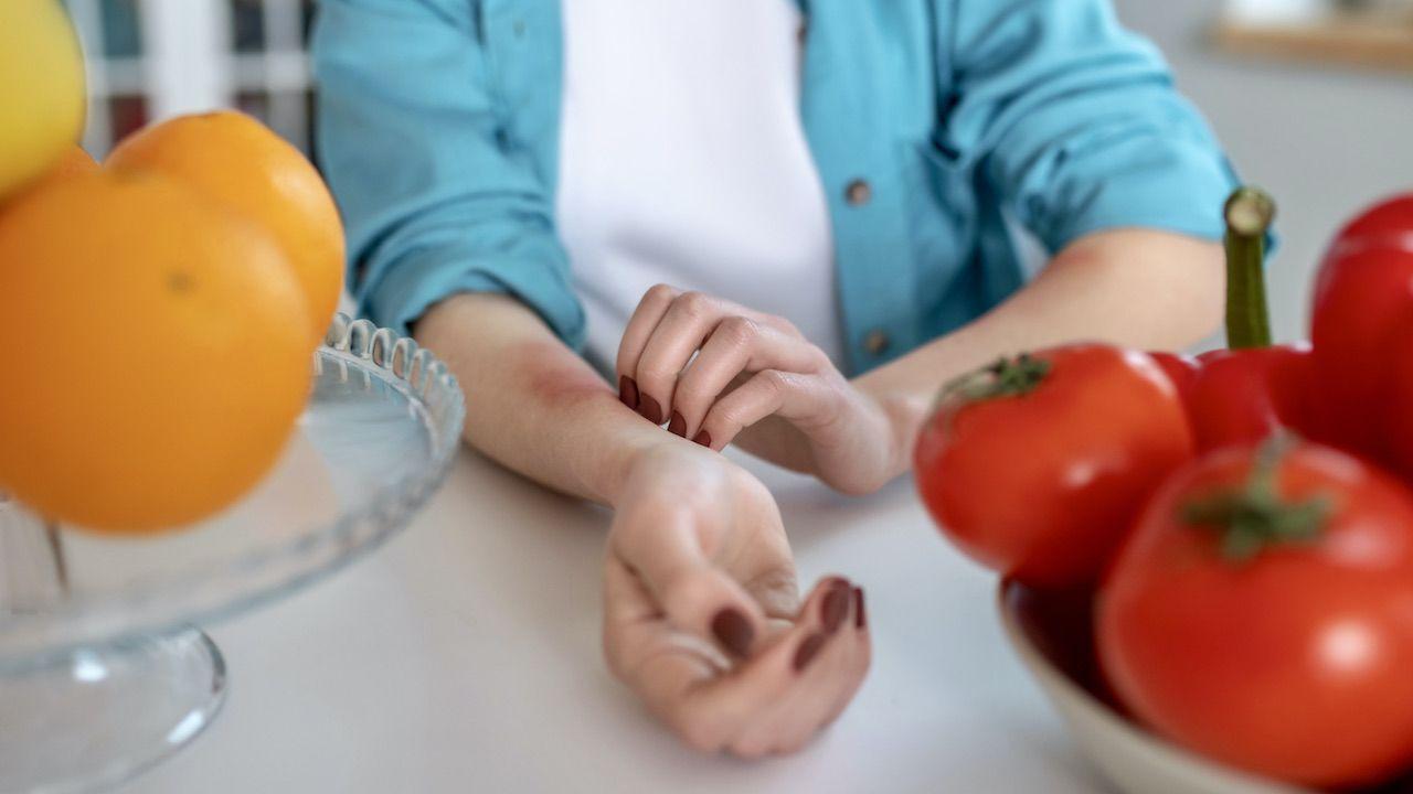 Alergia pokarmowa dotyka ok. 8 proc. dzieci i 10 proc. dorosłych w USA  (fot. Shutterstock/Dmytro Zinkevych)