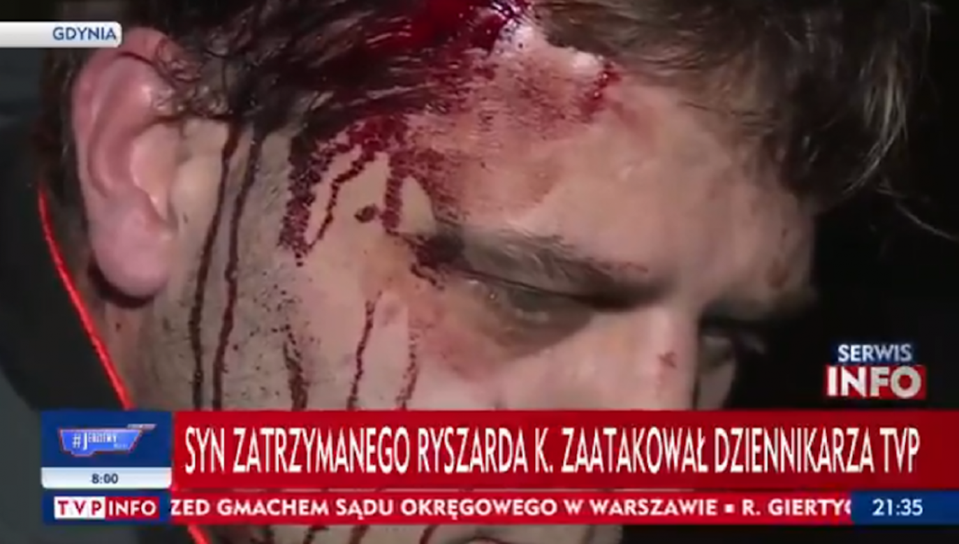Ofiara została zaatakowana tylko dlatego, że ekipa, z którą była, chciała zadać agresorowi niewygodne pytania (fot. TVP Info)