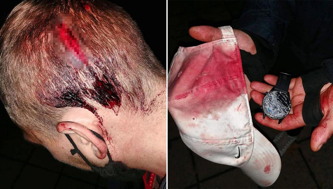 Mężczyzna trafił do szpitala, dziś złoży zawiadomienie na policję (fot. Facebook/Żołnierze Chrystusa)